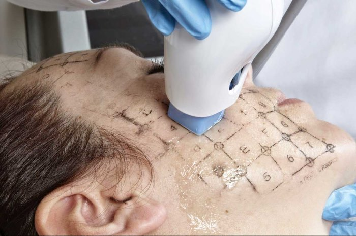 Find Out How the Non-Invasive Thermagie-CPT Work