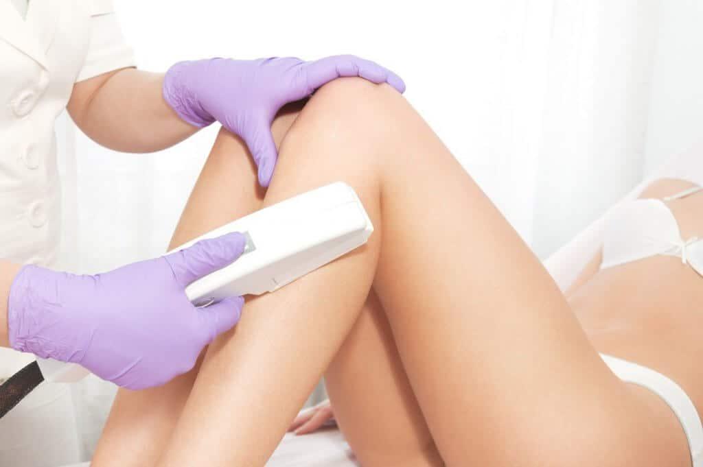 IPL laser hair pigmentation freckles red vein stretch mark removal Artarmon