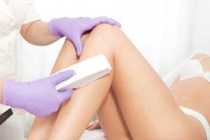 IPL laser hair pigmentation removal Artarmon red vein