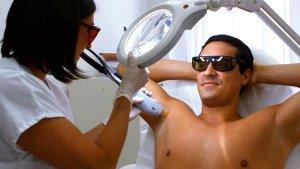 IPL laser hair pigmentation removal Riverview red vein #1