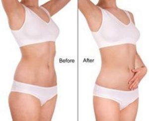 Fat freezing cavitation cool sculpting cryolipolysis laser liposuction Lindfield
