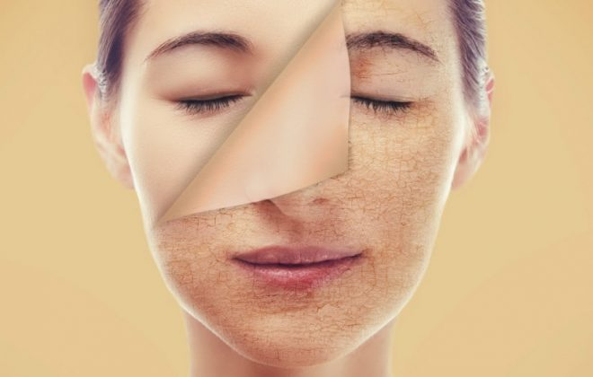 Dry Skin Care - Best Treatments for Dry Skin - Xara Skin Clinic Sydney