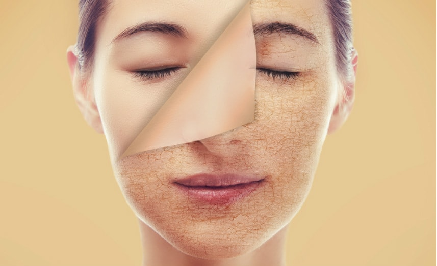 Dry Skin Care - Best Treatments for Dry Skin - Xara Skin Clinic Sydney