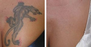 Laser tattoo removal treatment after care what's involved?