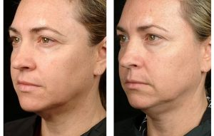 Anti aging wrinkle remove face lift Rose Bay #1 Thermagie skin tightening