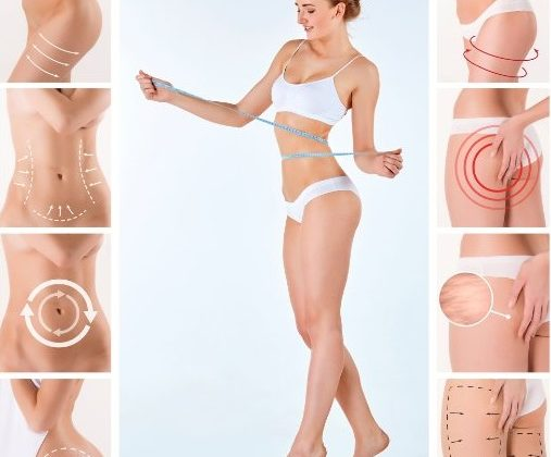 Myths and question about fat freezing treatments in Sydney