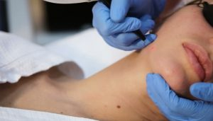Laser clinic treatments cost price bargains North Sydney