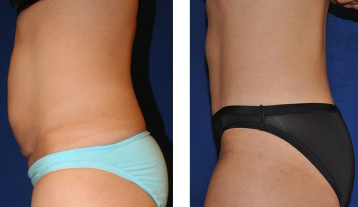 Prices Safe Effective Fat Removal Freezing Cool Sculpting Sydney