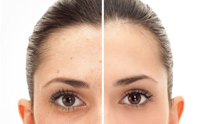 Fast effective IPL laser pigmentation removal Sydney