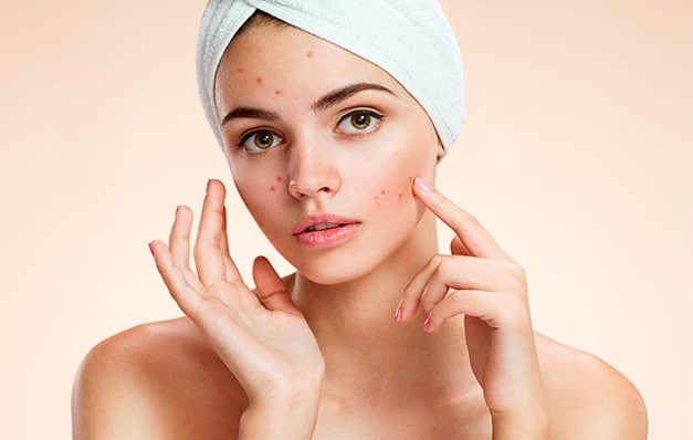 Acne scar removal facial peels light oxygen therapy Botox dermal fillers Mona Vale