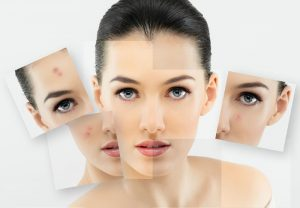 Acne scar removal facial peels light St Ives #1 best therapy