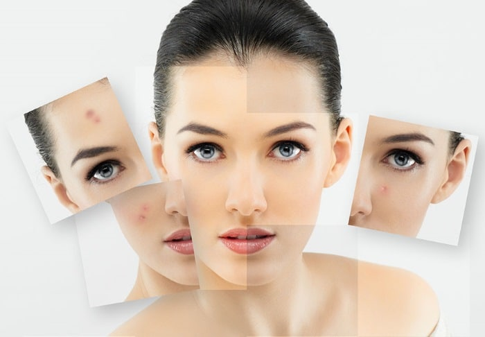 Acne scar removal facial peels light St Ives #1 best therapy oxygen Botulinum and dermal fillers