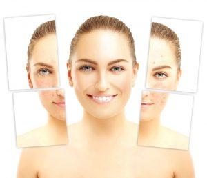 Laser clinic skin rejuvenation Mosman resurfacing repair #1