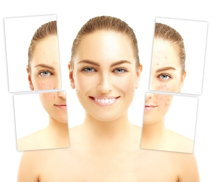 Laser clinic skin rejuvenation Mosman resurfacing repair skin care whitening