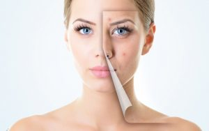 Acne scar removal facial peels light therapy Chiswick
