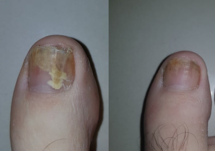 Fungal toe finger nail removal treatment Sydney onychomycosis