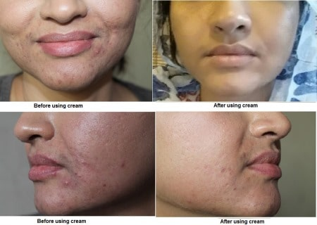 acne and acne scar removal cream Sydney