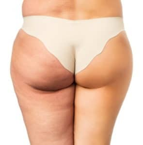 Cryolipolysis fat freezing removal Sydney non invasive surgical
