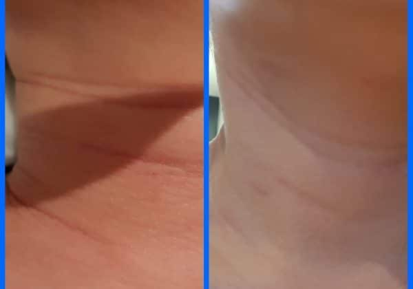 Remove get rid deep lines wrinkles HIFU skin tightening Sydney