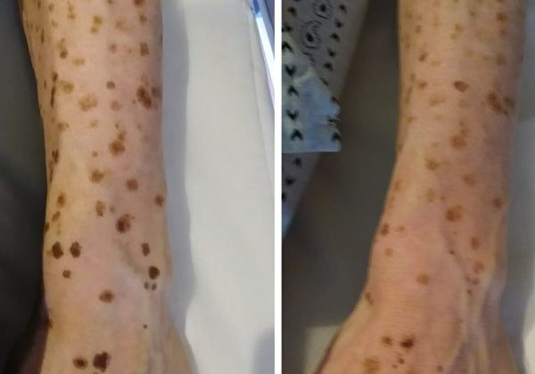Sun Age Liver Spots Pigmentation Removal Before After Sydney