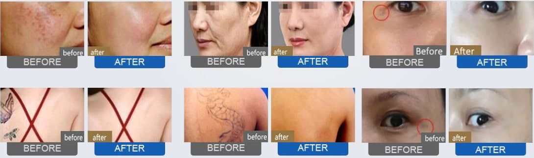 Best Picosure laser skin treatments Sydney