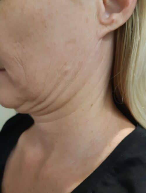#1 fantastic HIFU double chin wrinkle removal treatment Sydney