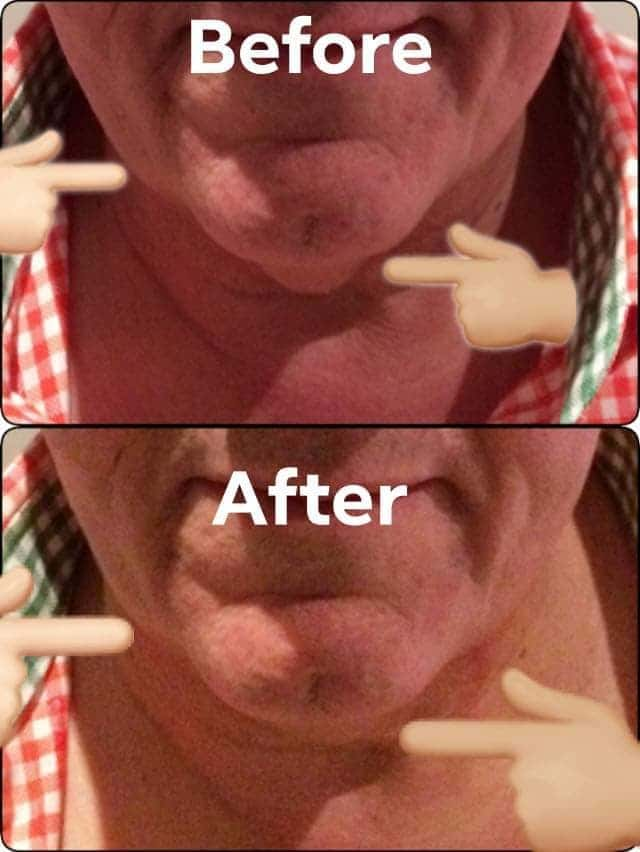male before and after 3D HIFU double chin removal Sydney