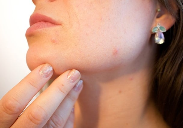 Best laser acne scar removal Sydney #1 price picosecond