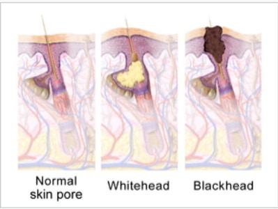 acne scar removal Sydney image
