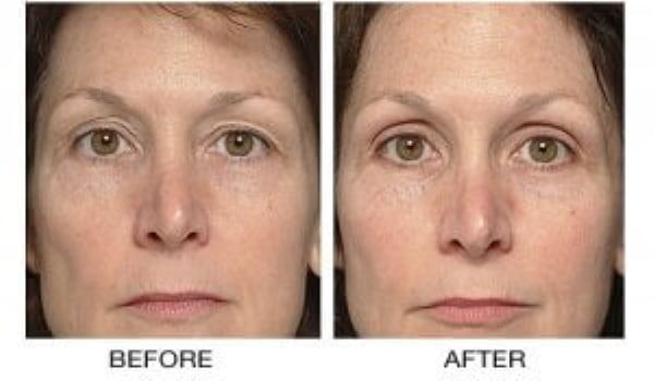 Anti aging wrinkle remove face lift Cammeray #1 Thermagie Skin tightening