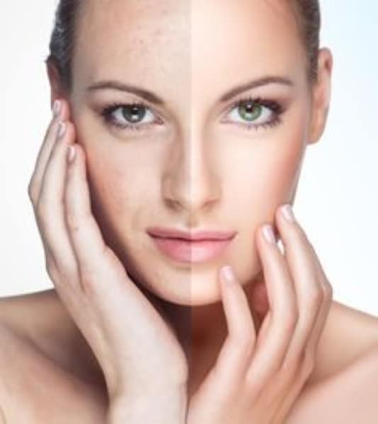 anti aging wrinkle remove face lift Neutral Bay #1 Thermagie skin tightening