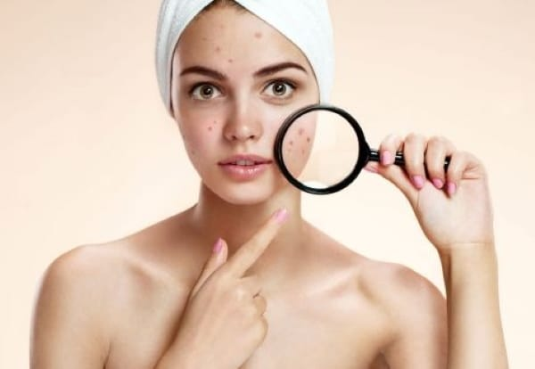 Acne scar removal facial peel light Bondi #1 best therapy oxygen Botulinum and dermal fillers