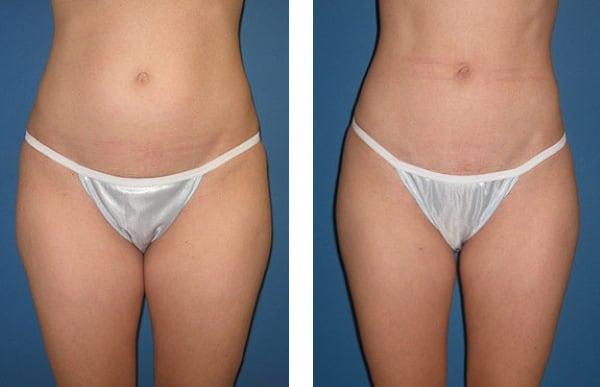 Fat freezing cryolipolysis lipo Naremburn cool sculpting #1 cavitation laser liposuction