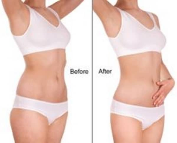 Fat freezing cryolipolysis lipo Lindfield cool sculpting cavitation laser liposuction