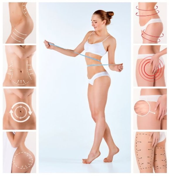Fat freezing cryolipolysis lipo Whale Beach cool sculpting cavitation laser liposuction