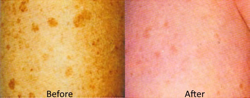 IPL laser lesion liver spot removal Sydney #1 best safe treatment