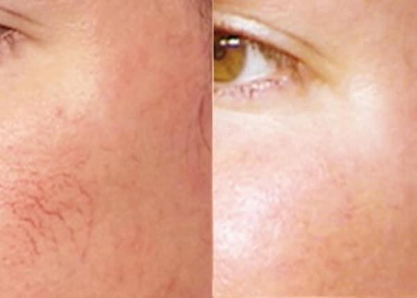 IPL laser red spider vein removal Sydney best #1 effect safe