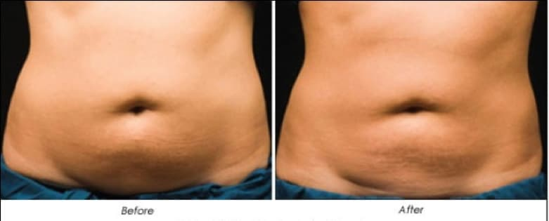Laser fat removal reduction Sydney #1 best great price value