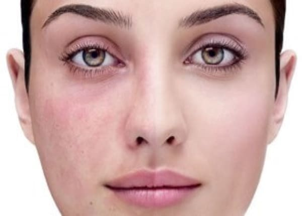 Rosacea facial vein removal treatment Sydney #1 safe effect