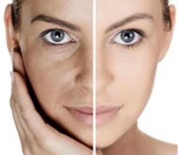 RF ultrasound skin tightening Sydney #1 best liposuction