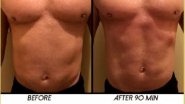 3D HIFU deals fat removal before and after Sydney 300x169