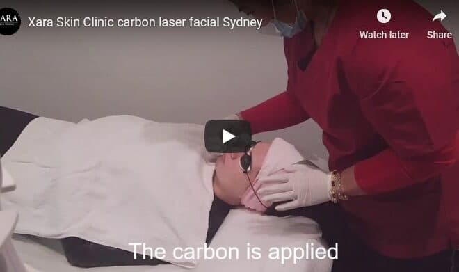 Carbon black doll gold mask laser rejuvenation facial Sydney