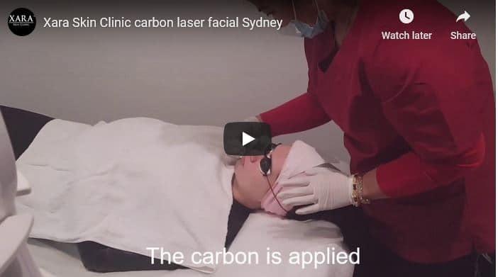 Special price laser carbon facial Sydney #1 limited offer