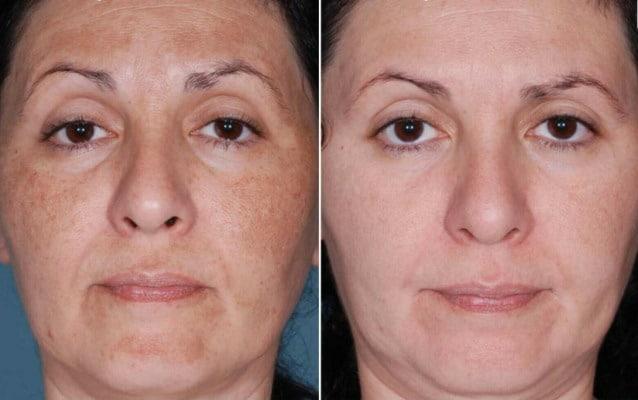 Dark spot skin whitening bleaching serum cream #1 great
