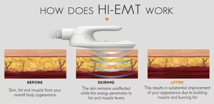 How does HL EMT work burn fat and create muscle