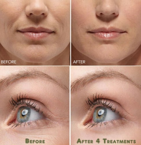 Hyaluronic acid gel cream anti-aging wrinkle face and eye