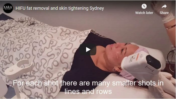 HIFU Fat Removal Sydney | Permanent Fat Reduction Treatments