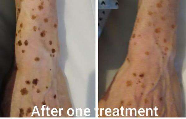 Sun Spot Age Spots Pigmentation Removal