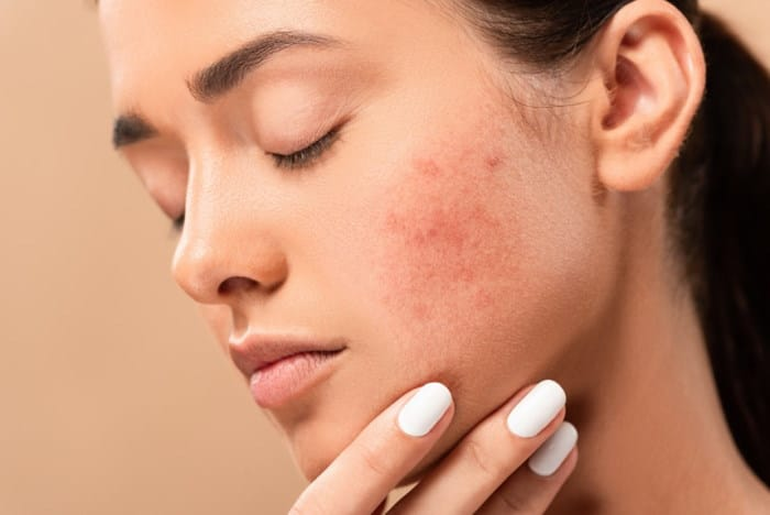 5 Proven tips for fighting acne - best ideas treatments