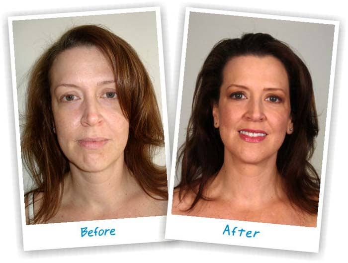 Thermagie-cpt tighter skin treatment Sydney #1 best results